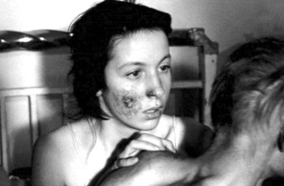 Η ερωτική σκηνή μεταξύ δύο λεπρών που προκάλεσε σάλο. Η πρώτη ταινία για τη Σπιναλόγκα ήταν ασπρόμαυρη και πρωταγωνιστούσε ο Ορέστης Μακρής. Έπαιζαν και χανσενικοί ασθενείς - ΜΗΧΑΝΗ ΤΟΥ ΧΡΟΝΟΥ